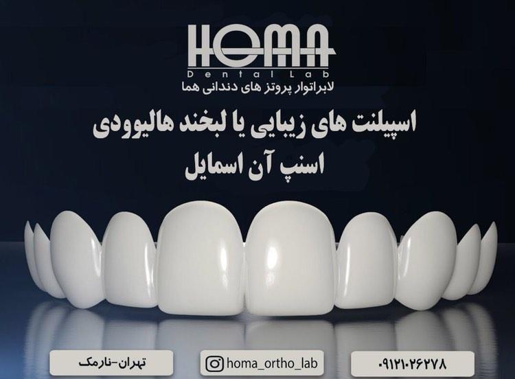 لابراتوار پروتزهای دندانی هما